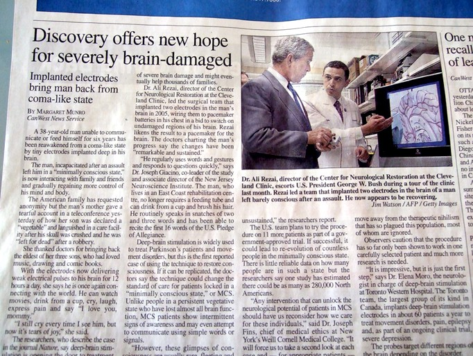 New hope for severely brain-damaged