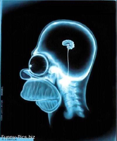 The Man's Brain